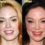 Cosmetic surgery, apart from the mainstream