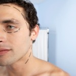 Cosmetic surgeries male